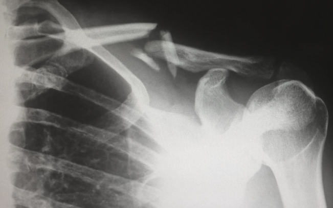 Digital-Radiography